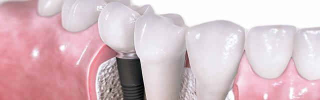 Oral Healthcare with Dental Implants