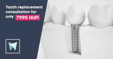 Tooth replacement consultation in the centre of Budapest!