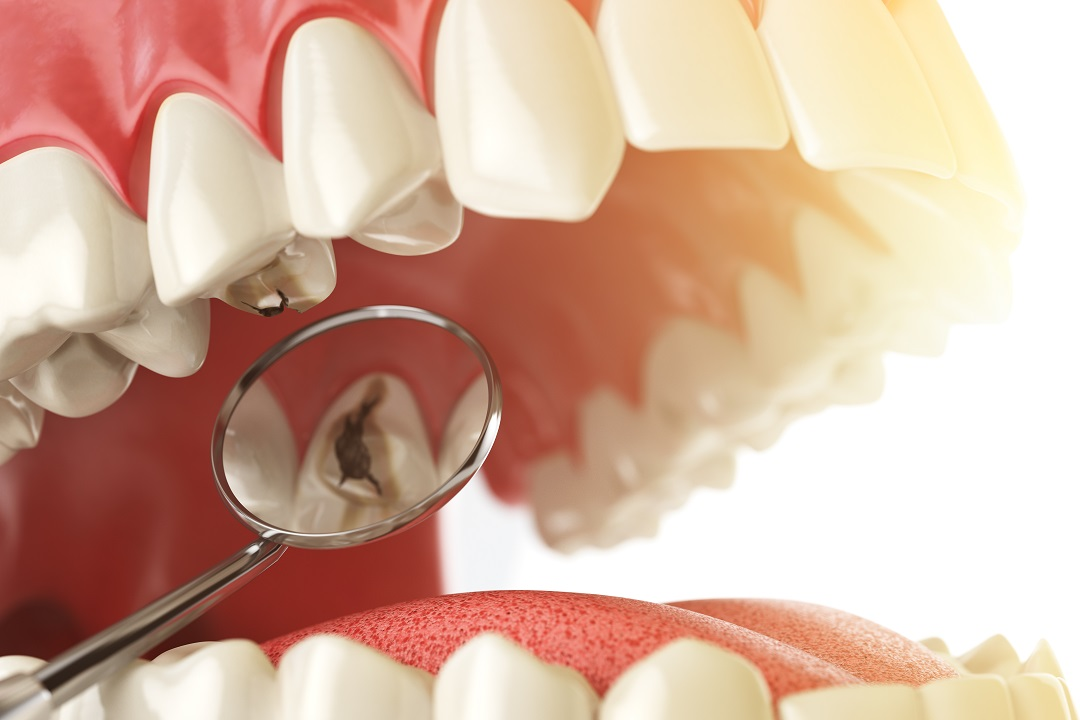 how to fix a tooth filling at home